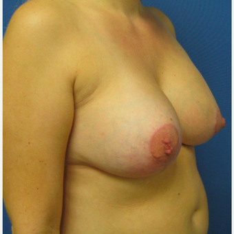 35-44 year old woman treated with Breast Lift with Implants after 3514103
