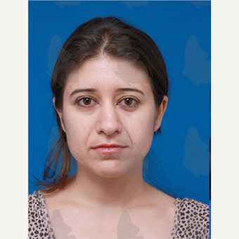 25-34 year old woman treated with non surgical Facelift before 2783108