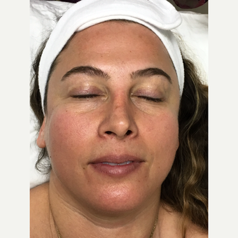 35-44 year old woman treated with Dermabrasion before 3630478