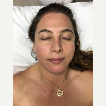 35-44 year old woman treated with Dermabrasion after 3630478
