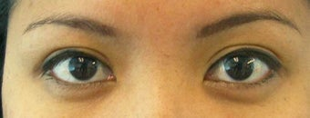 Asian Eyelid Asymmetry after 1507934