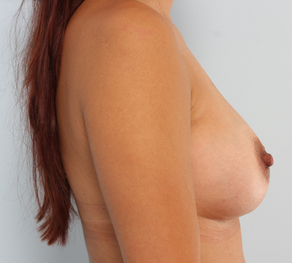 Breast Augmentation  after 920099