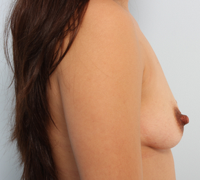 Breast Augmentation  before 920099