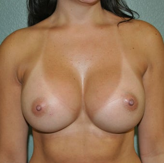 Breast Augmentation, Breast Implants after 1114923