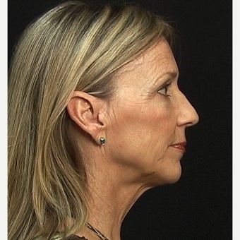 Facelift, Browlift and Rhinoplasty 1735289