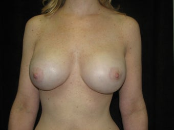 Implant Breast Reconstruction with Implants and AlloDerm