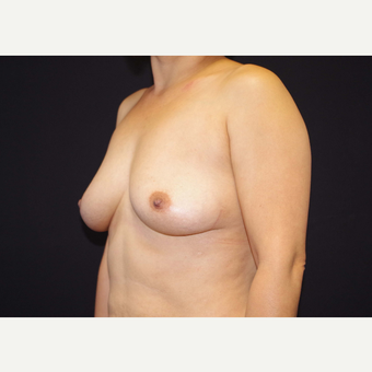 35-44 year old woman treated with Breast Implants before 3441107