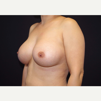 35-44 year old woman treated with Breast Implants after 3441107