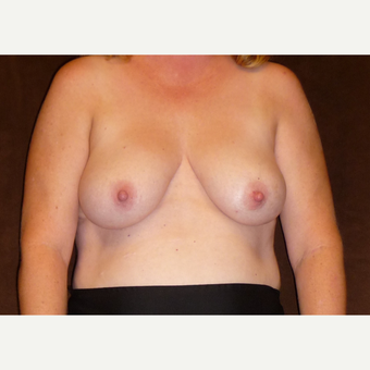45-54 year old woman treated with Breast Reconstruction before 3041288