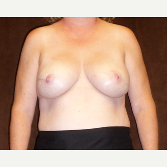 45-54 year old woman treated with Breast Reconstruction after 3041288