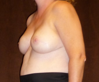 45-54 year old woman treated with Breast Reconstruction 3041288
