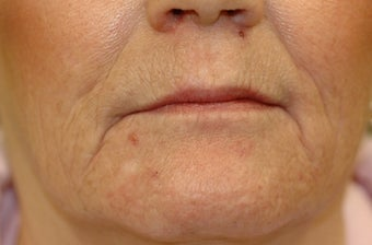 Juvederm before 871638