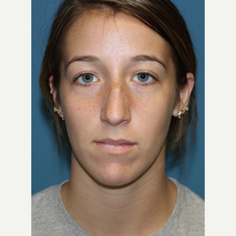 18-24 year old woman treated with Rhinoplasty before 3703591