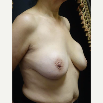 55-64 year old woman treated with Breast Implant Revision before 3014461