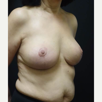 55-64 year old woman treated with Breast Implant Revision after 3014461