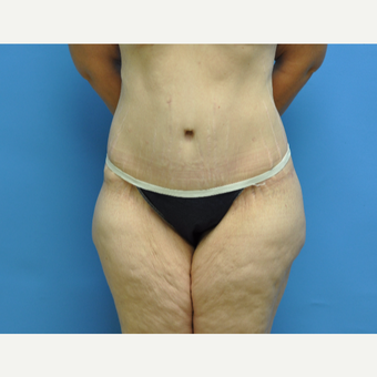40 year old woman treated with Tummy Tuck after 2956401