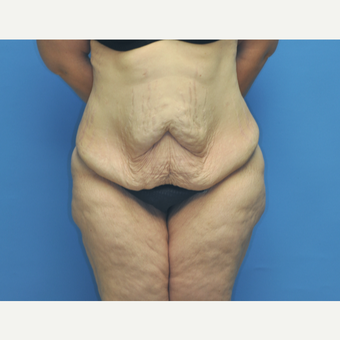 40 year old woman treated with Tummy Tuck before 2956401