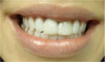 Zoom! Laser Whitening after 326055