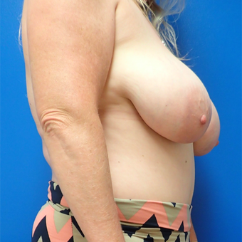 55-64 year old woman treated with Breast Reduction before 3330884
