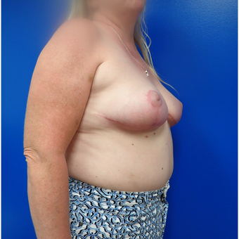 55-64 year old woman treated with Breast Reduction after 3330884