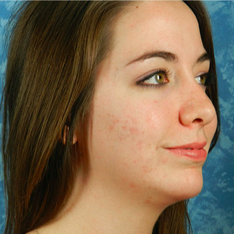 Chin Surgery after 3124461
