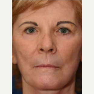 65-74 year old woman treated with Chemical Peel after 3646116