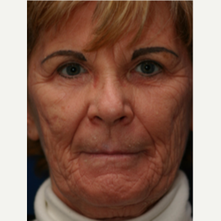 65-74 year old woman treated with Chemical Peel before 3646116