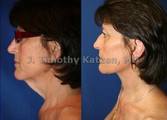 Neck liposuction only before 667231