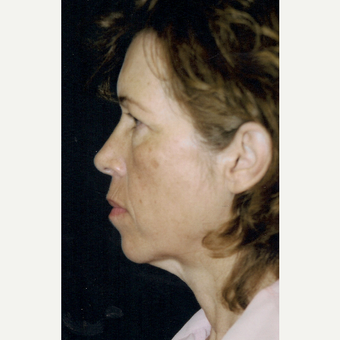 45-54 year old woman treated with Facelift before 3271875