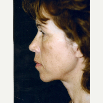 45-54 year old woman treated with Facelift after 3271875