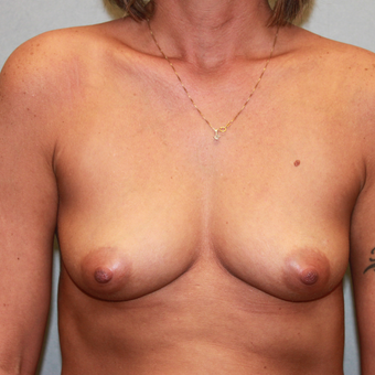 35-44 year old woman treated with Breast Augmentation before 3179780