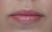 Restylane Injections for Lip Augmentation after 53752