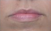 Restylane Injections for Lip Augmentation before 53752