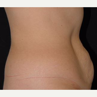 35-44 year old woman treated with Tummy Tuck before 3282644