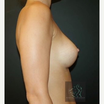 35-44 year old woman treated with Breast Implants after 3109855
