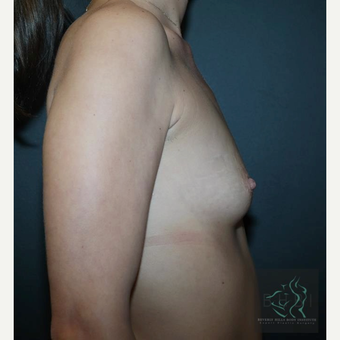 35-44 year old woman treated with Breast Implants before 3109855