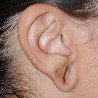 18-24 year old woman treated with Ear Lobe Surgery before 1771429