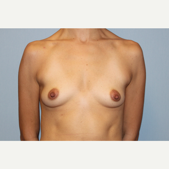 25-34 year old woman treated with Breast Augmentation before 3569765