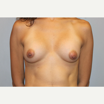 25-34 year old woman treated with Breast Augmentation after 3569765