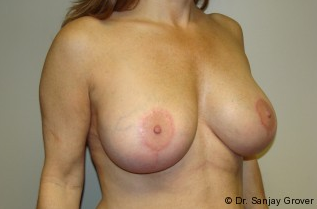 Breast Implant Revision 961298