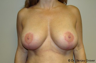 Breast Implant Revision after 961298