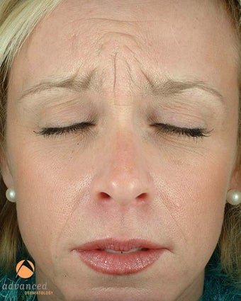 Female Patient Treated with BOTOX® Cosmetic before 1047033