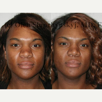 35-44 year old woman treated with African American Rhinoplasty