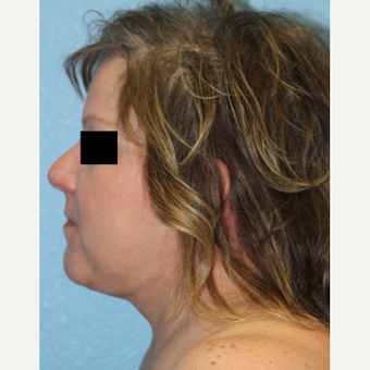 45-54 year old woman treated with Neck Lift after 3215482