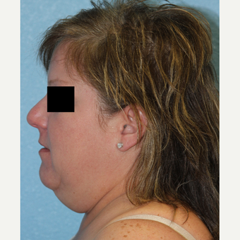 45-54 year old woman treated with Neck Lift before 3215482