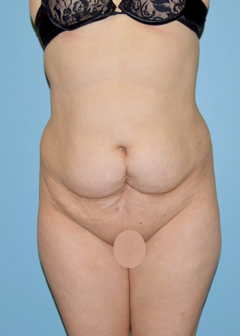 Abdominoplasty before 1515462