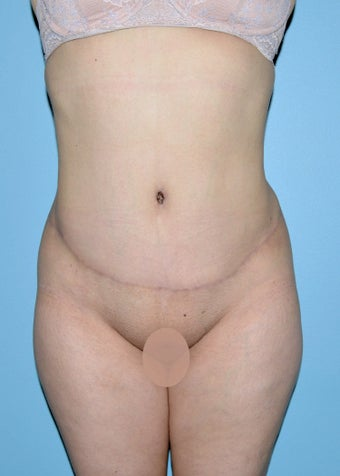 Abdominoplasty after 1515462