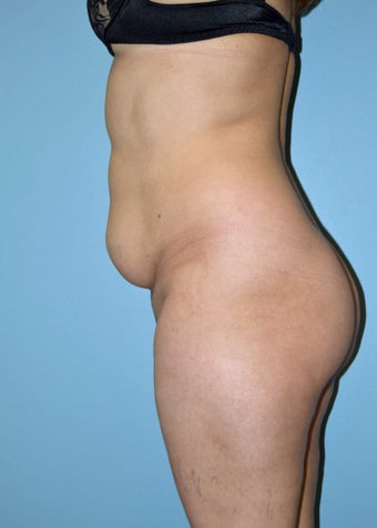 Abdominoplasty 1515462