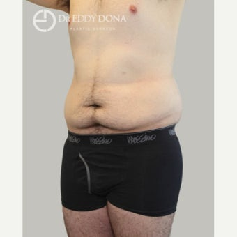 18-24 year old man treated with Tummy Tuck 1613974