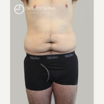 18-24 year old man treated with Tummy Tuck before 1613974